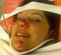 Kristen Adamson After Hit By A Car